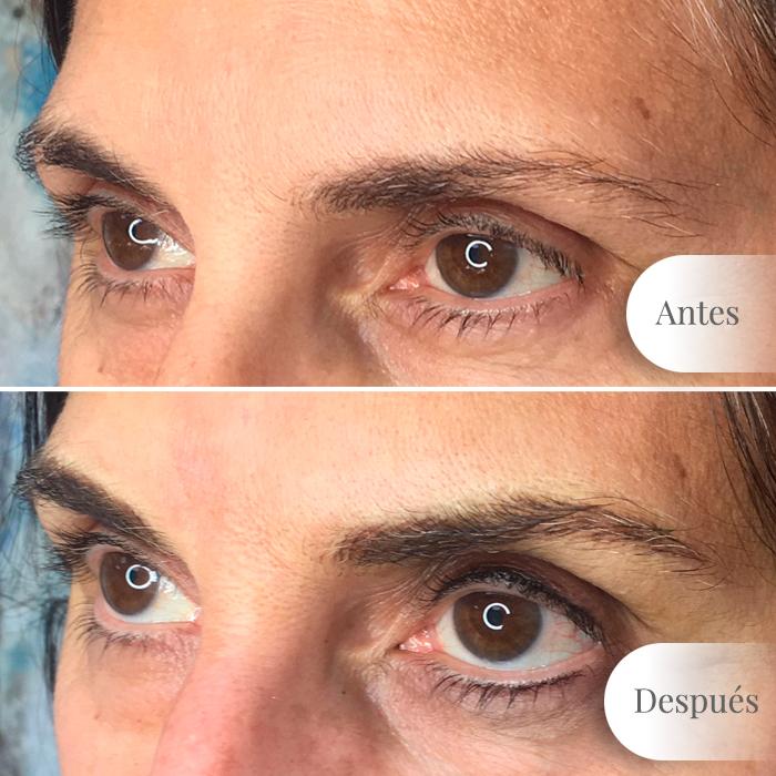 1. Antes y después