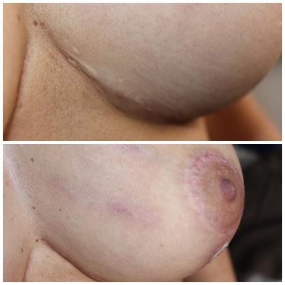 Cicatrices de Cirugías