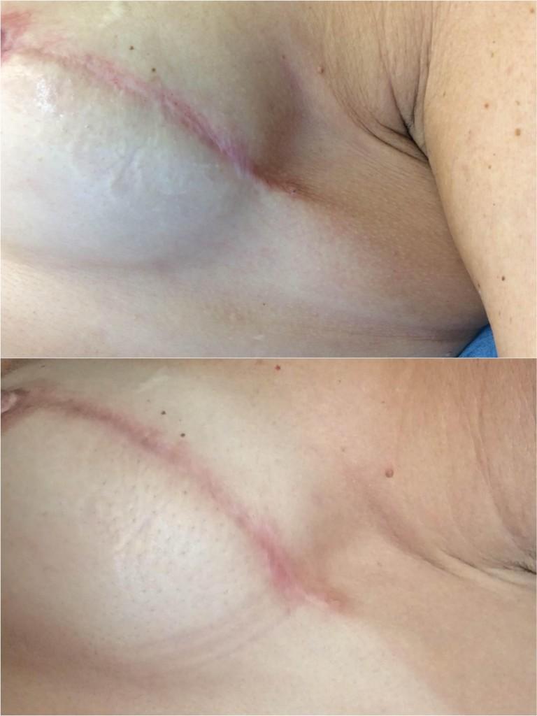 Cicatrices por cirugía de mastectomía