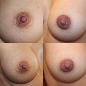 Tratamiento de cicatrices mamoplastia de aumento