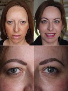 Tratamiento para alopecias