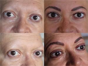 Alopecias de cejas