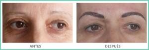 tratamiento relleno de cejas