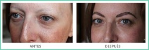 tratamiento para alopecias de cejas