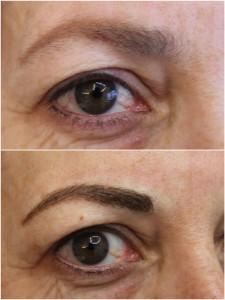 correcciones de cejas y ojos