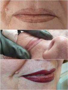 correcciones de labios