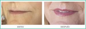 maquillaje permanentes de labios