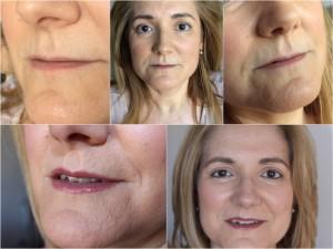micropigmentar-labios