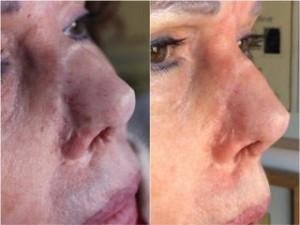 tratamiento de cicatrices nariz