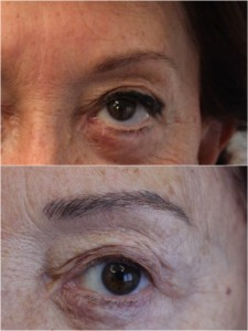 tratamientos de cejas