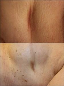 tratamientos de cicatrices por cirugía