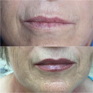 tratamientos-de-labios