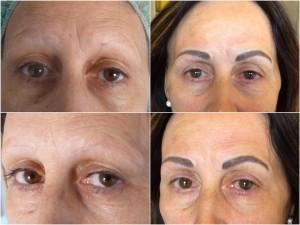 tratamientos para alopecias