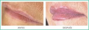 dermopigmentación vitiligo