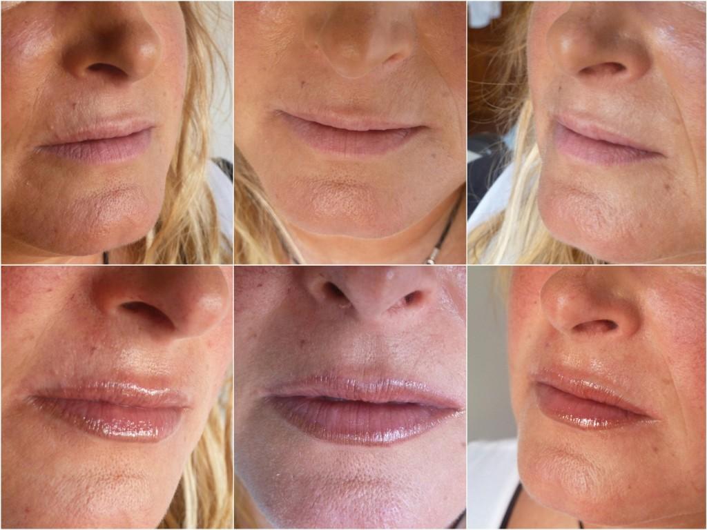 tratamientos esteticos labios