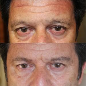 micropigmentación masculina