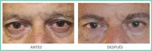 micropigmentación-masculina